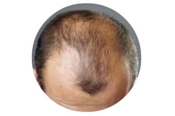Uomo con alopecia androgenetica - Prima dei trattamenti anticaduta