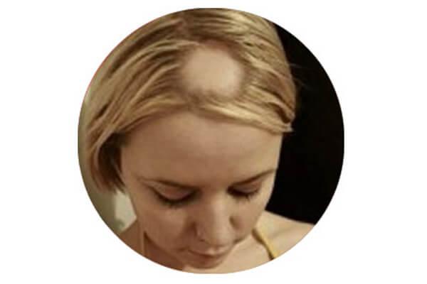 Testa di donna con alopecia areata