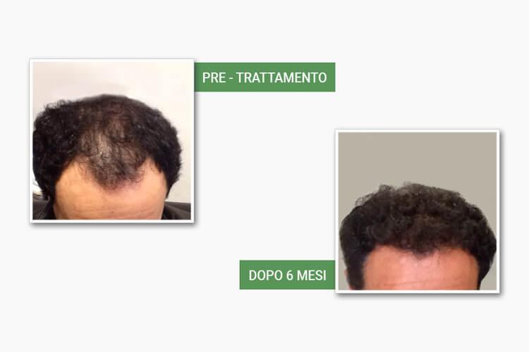 Testa di uomo prima e dopo l'auotrapianto da Medi Center