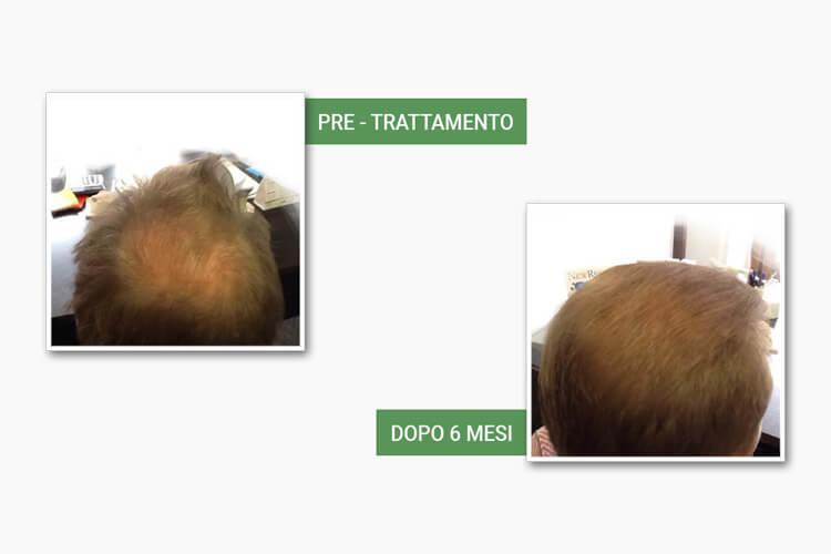 Testa di uomo prima e dopo l'autotrapianto Medi Center