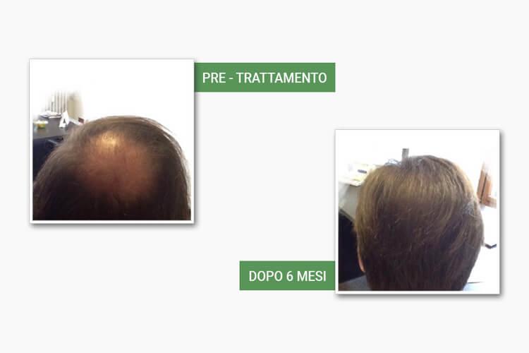 Testa calva e testa con capelli dopo l'autotrapianto da Medi Center