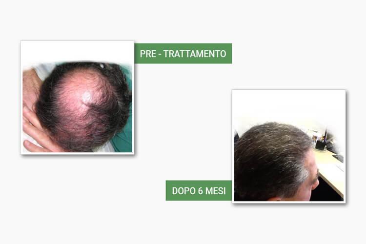 Testa calva prima del trattamento e testa con capelli dopo l'autotrapianto da Medi Center