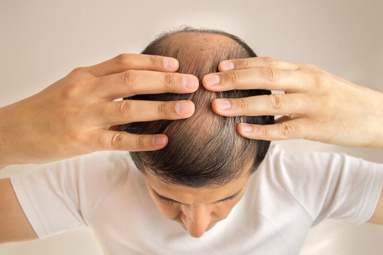 Uomo con problemi di alopecia