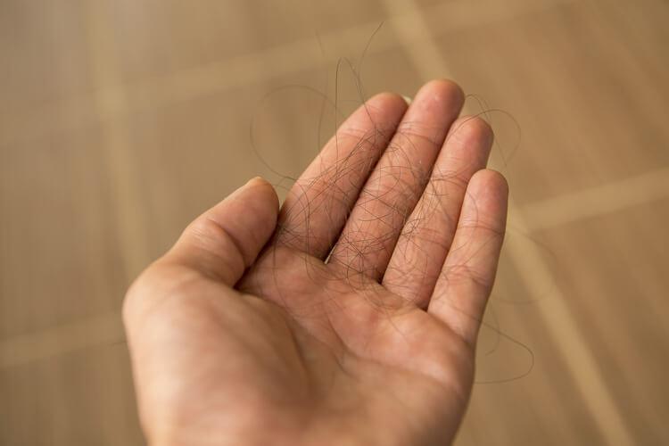 Mano con capelli - Prenota una visita tricologica