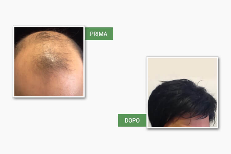 Testa uomo prima e dopo la protesi da medi center