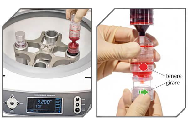 Centrifuga e provetta per trattamento prp di medi center