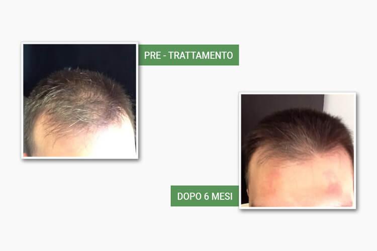 Testa di uomo prima e dopo il trattamento anticaduta di medi center