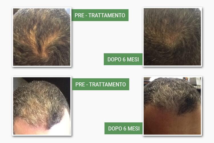 Teste di uomini prima e dopo il trattamento anticaduta di medi center