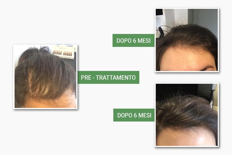 Testa con capelli prima e dopo il trattamento anticaduta di medi center