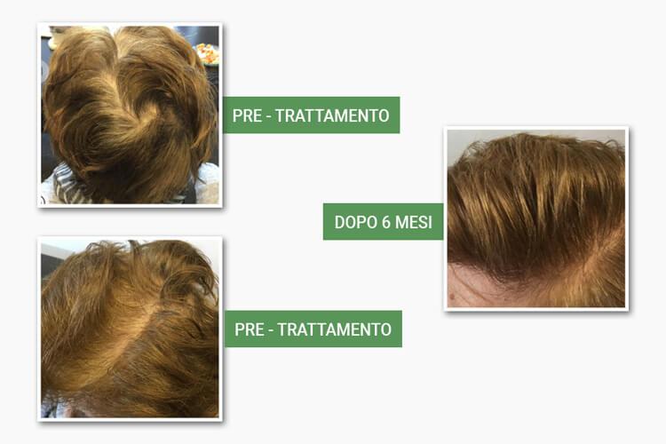 Testa prima e dopo il trattamento anticaduta di medi center