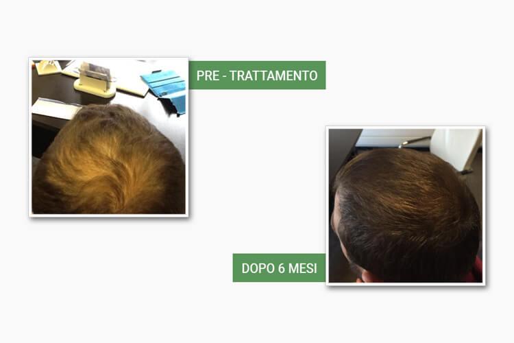 Testa di uomo prima e dopo il trattamento anticaduta medi center