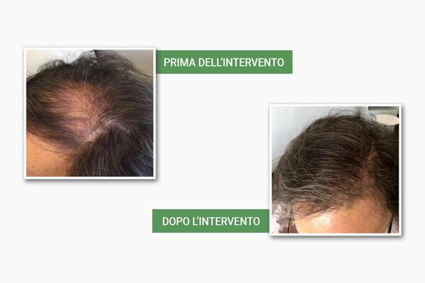 Testa di uomo con problemi di capelli