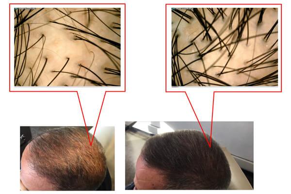 Testa di uomo prima e dopo il trattamento prp di medi center